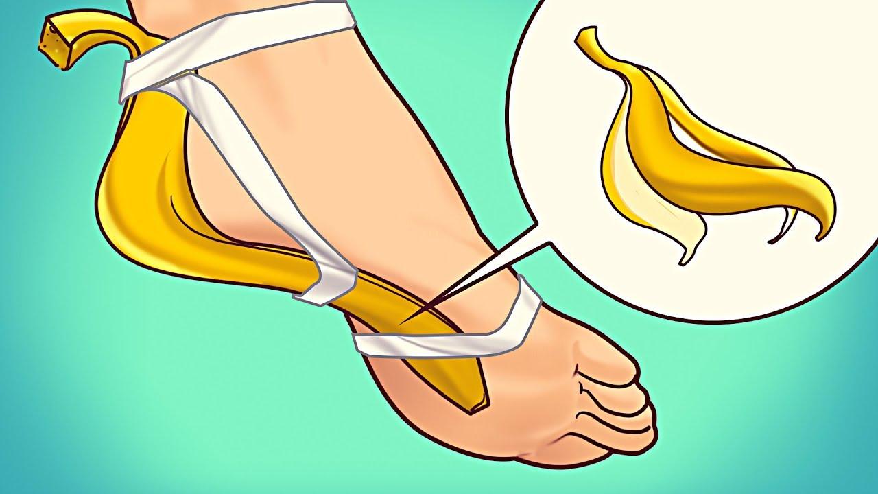 casca de banana remove calos.